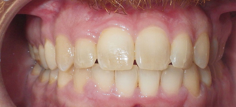 smiles by design orthodontics before and after